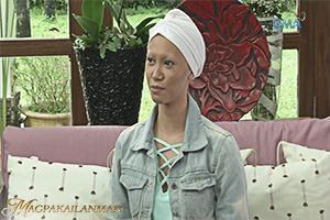 Magpakailanman: Ang babaeng may Alopecia Universalis (Full interview)